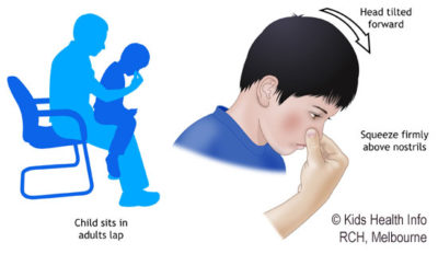 Illustration of How To Deal With Nosebleeds In Children