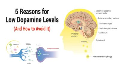Illustration of How To Reduce Excessive Dopamine