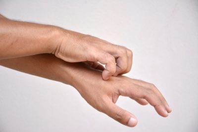 Illustration of Itching On The Skin Of The Hands Due To Excessive Hand Washing