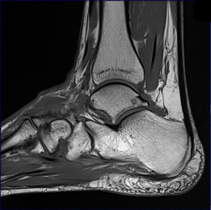 Illustration of MRI Results In Lower Extremity