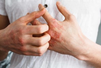Illustration of How To Deal With Itchy Skin