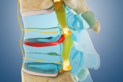 Illustration of Spine Feels Pain When Moving