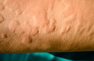 Illustration of Allergy Or Skin Disease, What Is The Cure