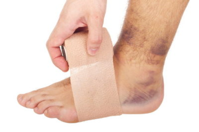 Illustration of Swelling Of The Feet After A Collision