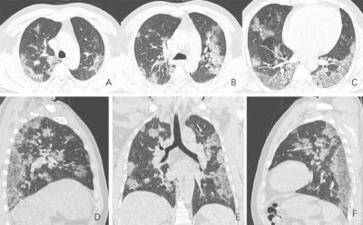 Illustration of Shortness Of Breath And CT Results Of Bronchopneumonia