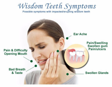 Illustration of Is It Okay If The Molars Are Not Removed?