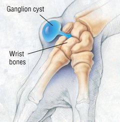 Illustration of Can You Give Birth Normally After A Cyst?