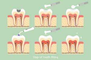Illustration of How To Deal With Cavities