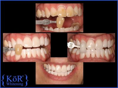 Illustration of Can Teeth Bleaching Be Done If Cavities?