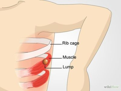 Illustration of Lumps In The Armpits And Pain In The Ribs