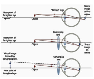 Illustration of The Cause Of The Difference In The Focus Point On The Eye, The Direction Of Eye Sight Becomes Different In The Left Eye