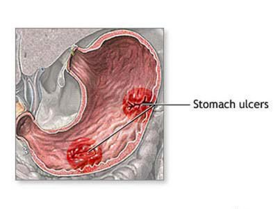 Illustration of Does This Include GERD Or Ulcer?