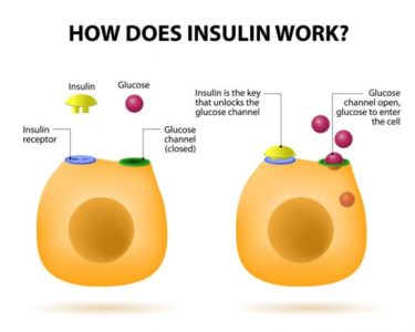 Illustration of Regarding The Use Of Insulin For People With Type 1 Diabetes