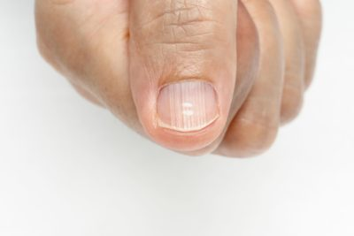 Illustration of How To Prevent Nails From Growing On A Finger That Was Broken In An Accident?