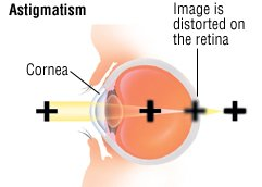 Illustration of The Cause Of Accompanied By Double Vision Looks Like There Is A Flash Of Light