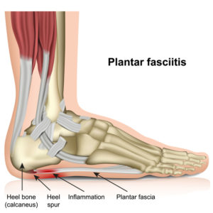 Illustration of Is Plantar Fasciitis With Plantaris Pain The Same?