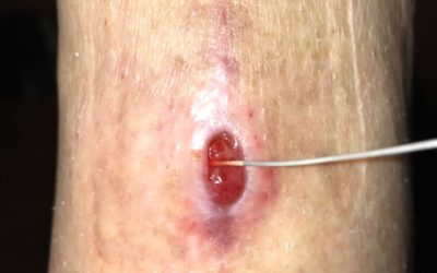 Illustration of How To Cure Sc Wounds That Open After 3 Weeks?