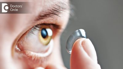 Illustration of The Use Of Contact Lenses For Cylindrical Eyes