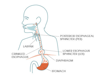 Illustration of Frequent Belching After Eating And Breathing Such As Narrowing
