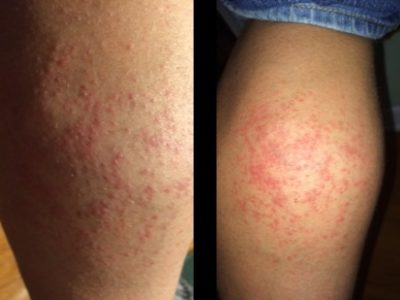 Illustration of Red And Blistering Rashes When Exposed To Singapore Flu?