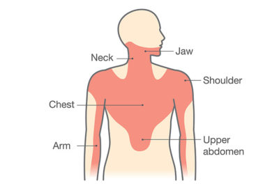 Illustration of Chest Pain Radiating To The Neck, Shoulders And Back?