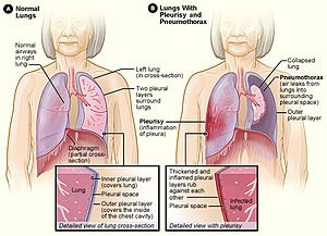 Illustration of Lung Is Like Being Stabbed When Breathing And Sputum Is White?
