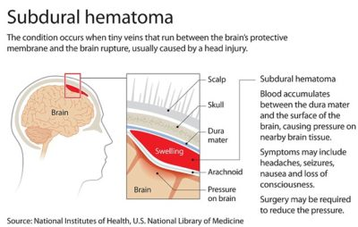 Illustration of Headache After A Head Bang?