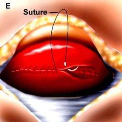 Illustration of Why Suture Cesarean Section Appears?