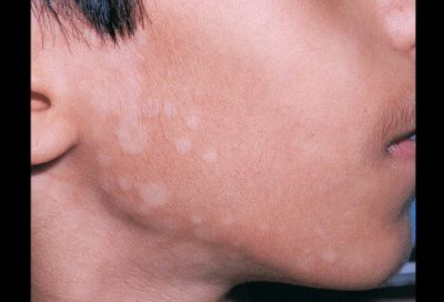 Illustration of How To Deal With Tinea Versicolor In Children?
