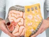 Causes Of Vomiting After Eating?