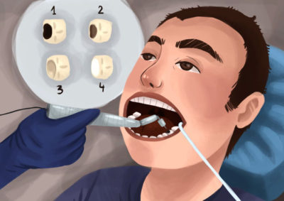 Illustration of Cavities Behind The Back And Feel Pain When Eating?