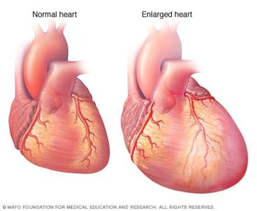 Illustration of Swelling Of The Heart At The Age Of 3 Years?