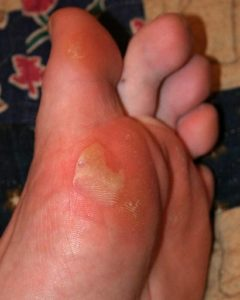"""Illustration of The Sole Of The Left Foot Is """"Watery Spots?"""