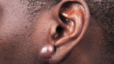 Illustration of Can Keloid Injection Be Done Alone?