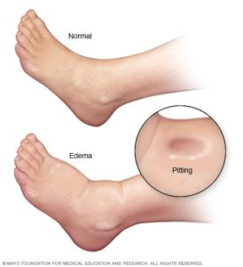 Illustration of Shortness Of Breath, Coughing, Swollen Feet And Under Eyes And Decreased Appetite?