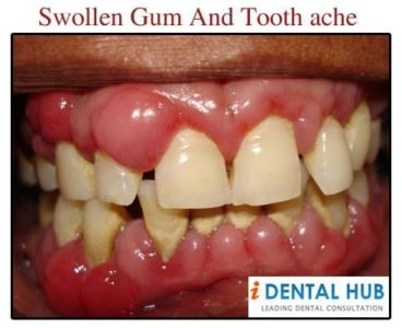 Illustration of Swollen And Throbbing Gums?
