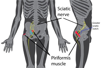 Illustration of Muscles In The Buttocks Hurt When The Leg Is Moved?