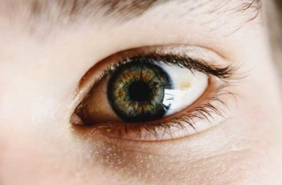 Illustration of Yellow Eyes Accompanied By Brown Spots And Sore?