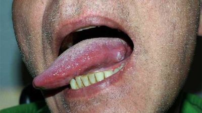Illustration of Do Patients With Early-stage Tongue Cancer At The Tip Of The Tongue Have To Undergo Radiotherapy?