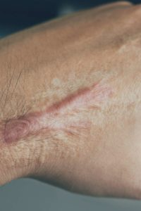Illustration of The Area Of the Injured Scar Is Hardened Inside The Skin?