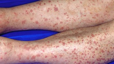 Illustration of Causes Red Spots Around The Thighs And Hands?