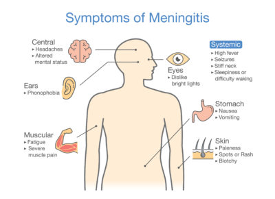 Illustration of I Want To Ask If I Have Meningitis?