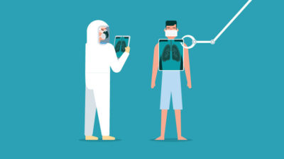 Illustration of Can You Do Lab Tests Directly For The Lungs Without A Doctor's Referral?