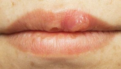 Illustration of Dry Cough With Mouth Sores On The Lips And Sores On The Tongue?