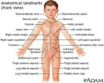 Lumps Like Bones In The Upper Middle Abdomen In Infants Aged 3 Days?
