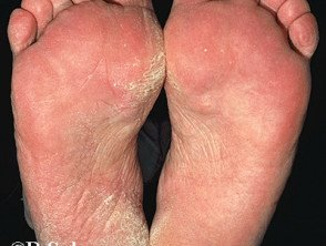 Illustration of Fungal Remedy On The Soles Of The Feet?