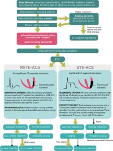 Illustration of Pain In Acute Coronary Syndrome