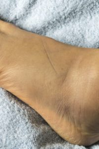 Illustration of Causes Swollen Feet After High Fever?