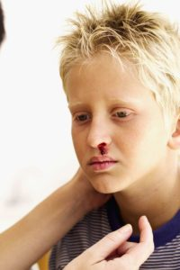 Illustration of Nosebleeds In Children Aged 8 Years When Coughing Colds?