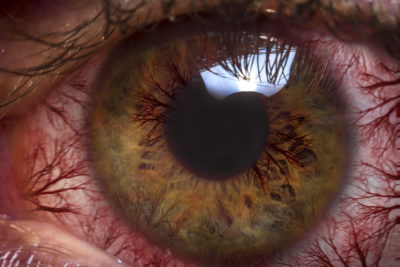 Illustration of Right Eye Is Red, Feels Lumpy, Itchy And Runny When You See The Gadget?